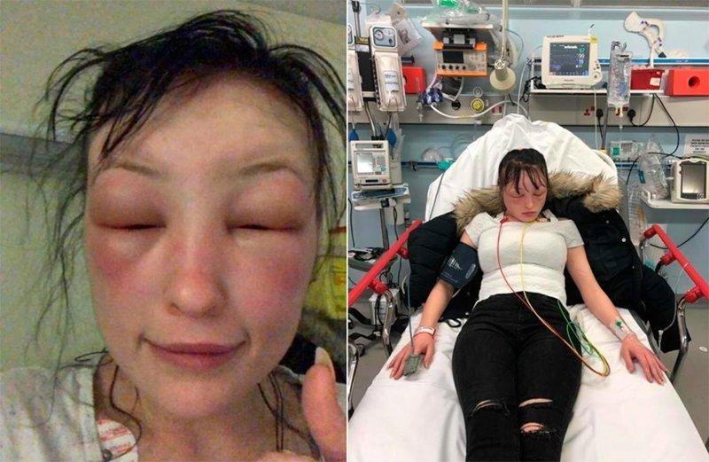 Девушку трижды госпитализировали после домашней покраски волос