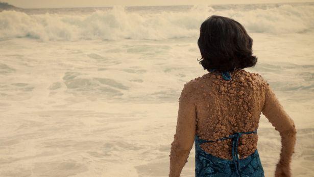 Женщина, которая вся покрыта пузырьками, решила выйти на пляж…