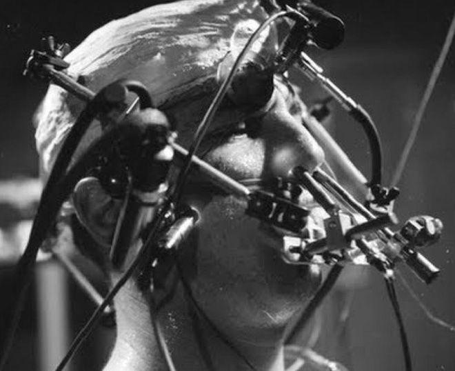 12 шокирующих медицинских экспериментов, проведенных на людях