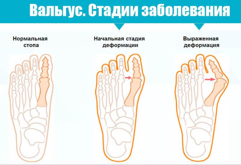 Почему происходит вальгусная деформация стопы