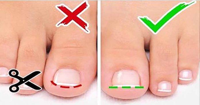 6 советов по уходу за ногами и ногтями на ногах!