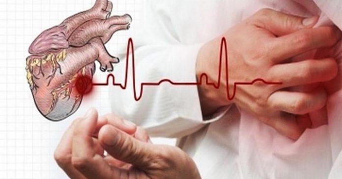 В случае сердечного приступа…