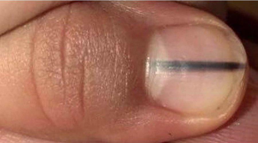 Если увидите такую полосу под ногтем — срочно к врачам!
