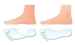 Лечение плоскостопия в домашних условиях — когда еще можно помочь и как это сделать