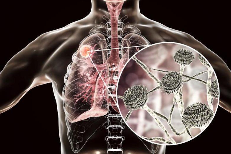 Какой вред наносят микотоксины организму
