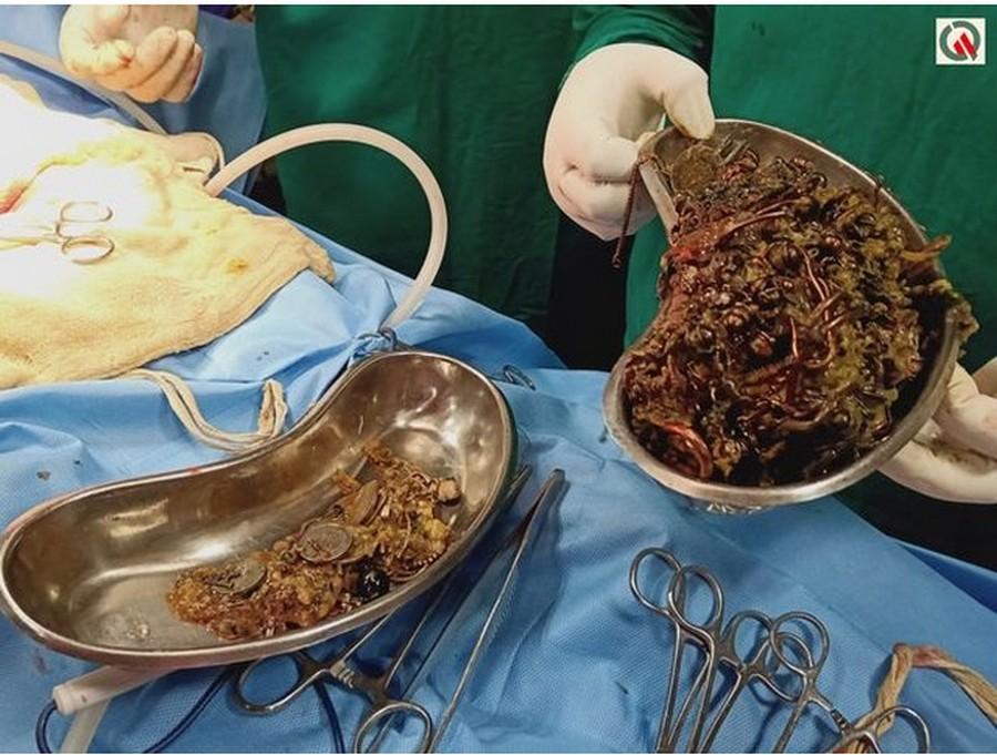 Индийские хирурги прооперировали девушку с «золотым запасом»