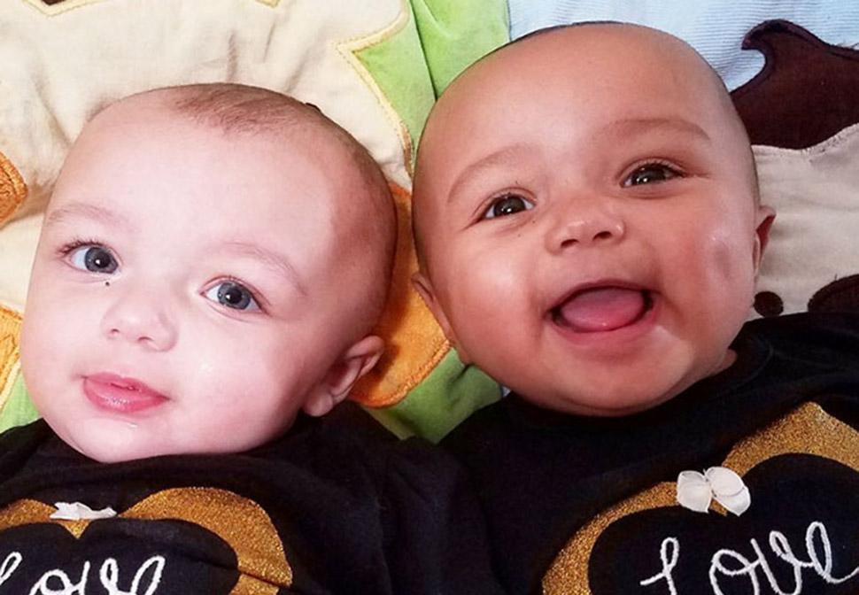Один белый, другой загорелый: редкий случай рождения близнецов с разным цветом кожи