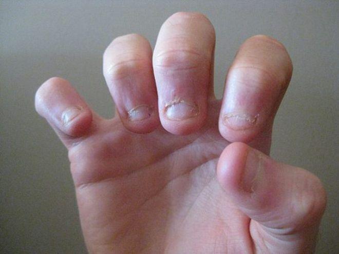 Неухоженная рука