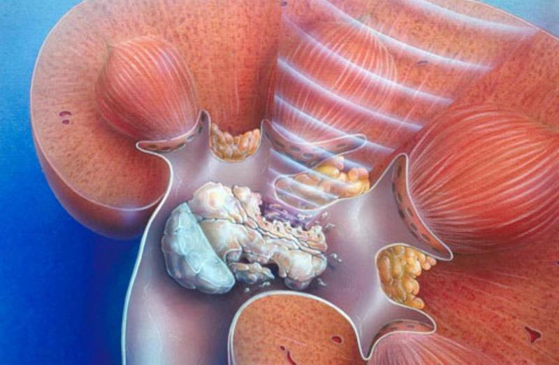 Риск приема кальциевых препаратов: камни в почках!