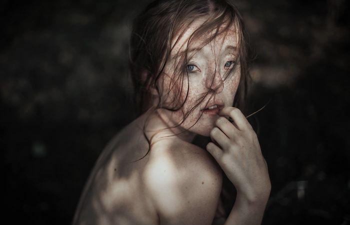 Девушка с редким дефектом лица сломала стереотипы о красоте, став успешной моделью
