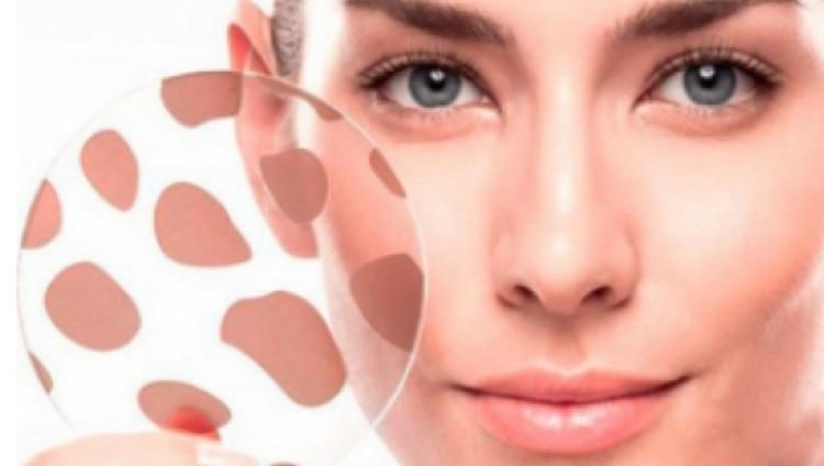 Гиперпигментация: методы вернуть коже снежную белизну