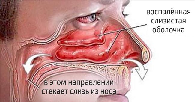 Как лечить нос и горло в домашних условиях