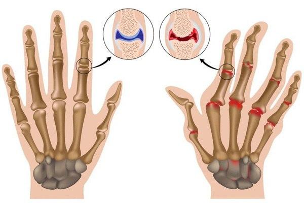 Гимнастика при артрите пальцев рук