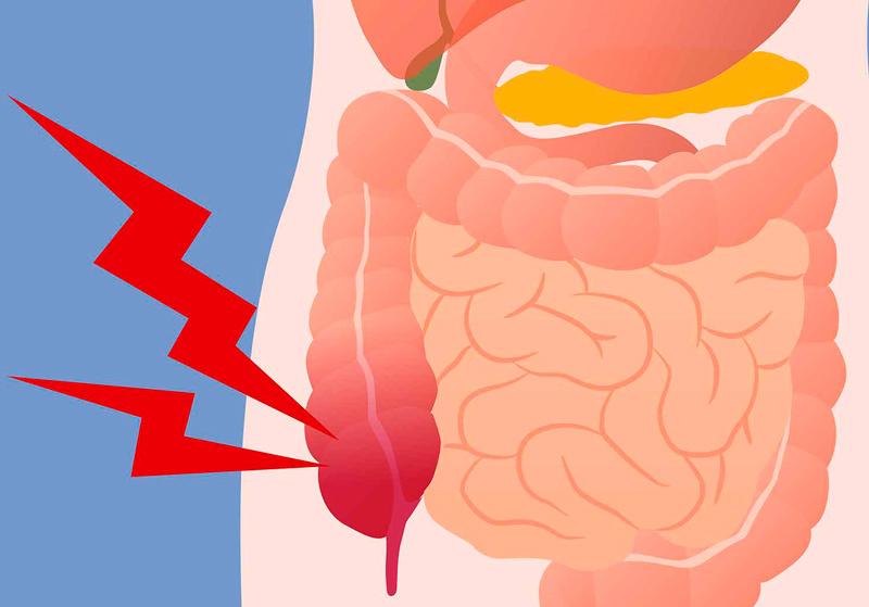 Рецепт, который поможет очистить кишечник от токсинов