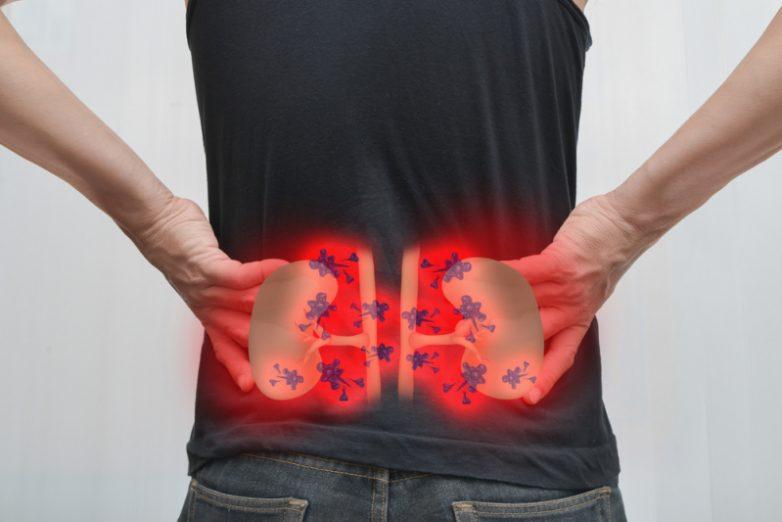 Скрытые симптомы почек, в которых мало кто подозревает онкологию