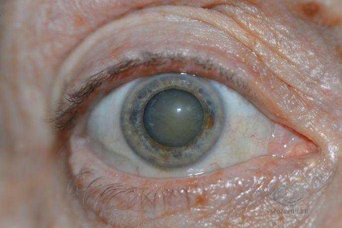 Причины лечение профилактика катаракты