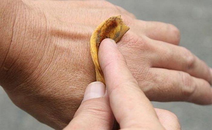 Банановая кожура против комариных укусов.