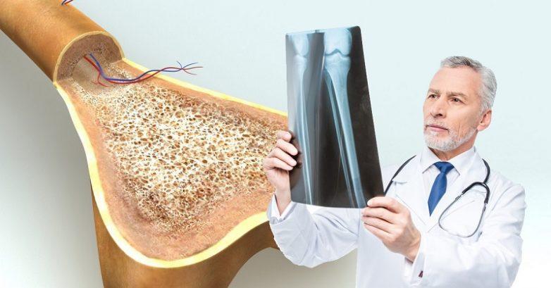 Как распознать и победить остеопороз?