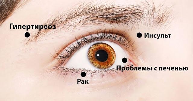 Глаза предупреждают о пробле…