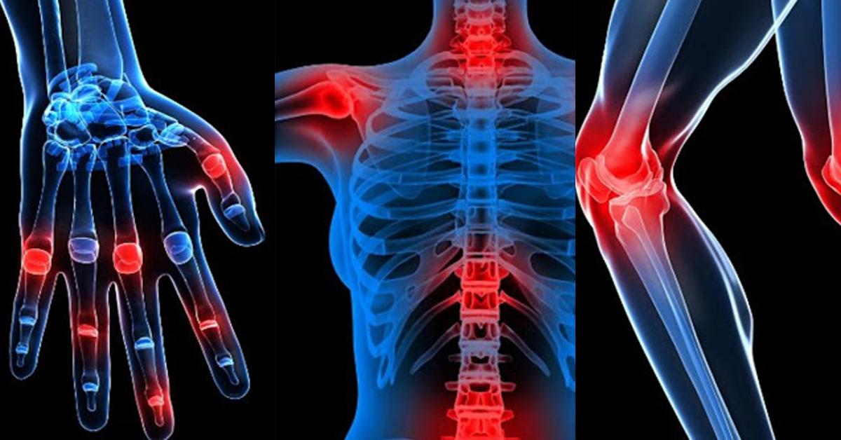 Артралгии: остеопрактика мож…