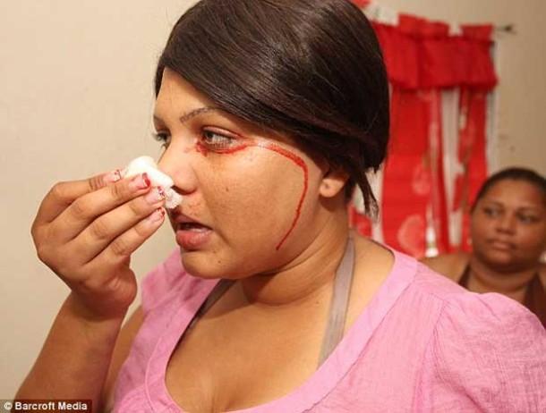 Люди плачущие кровавыми слезами. Любопытные факты