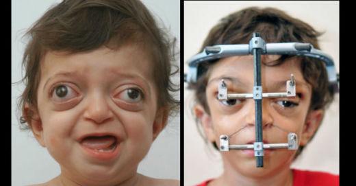 Врачам удалось исправить лицо мальчика с синдромом Крузона