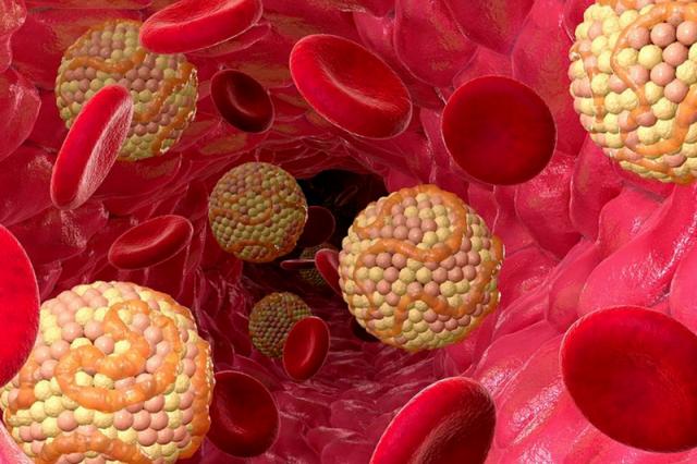 Смогут ли моноклональные антитела заменить статины?