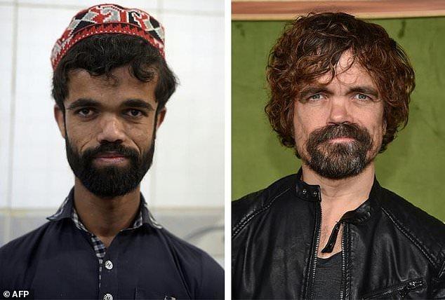 Игра клонов: пакистанский официант, как две капли воды, похож на Тириона Ланнистера из легендарного сериала