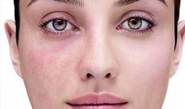 Лечение купероза на лице народными средствами