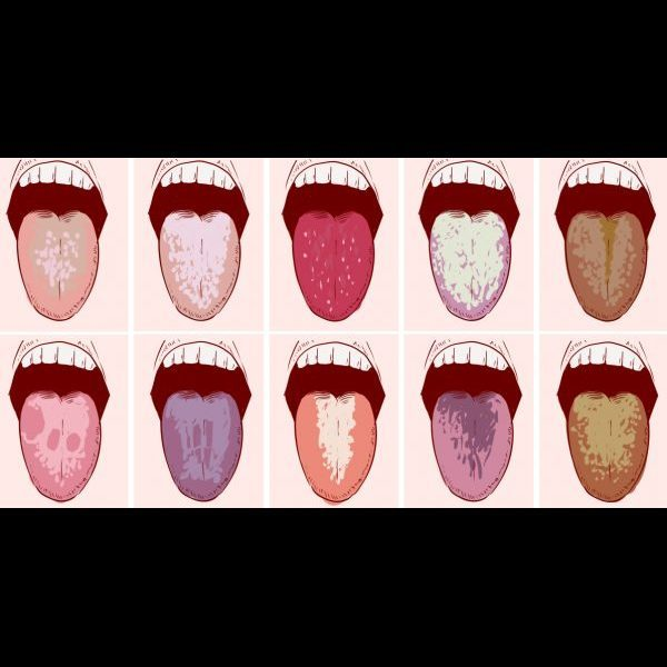 Что означает неприятный привкус во рту по утрам?