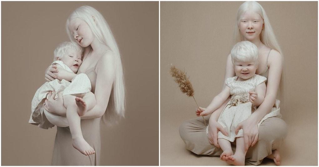 Удивительные сестры-альбинос…