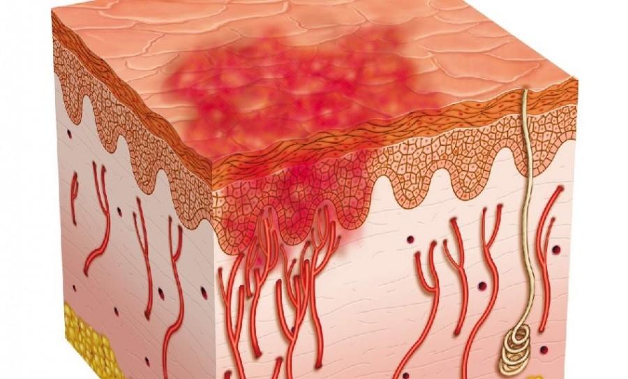 Психосоматика кожных заболеваний на примере экземы