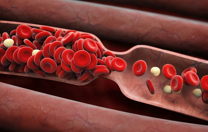 8 ранних признаков сгустка крови, которые нельзя игнорировать