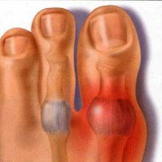 Народные рецепты против косточки на ногах