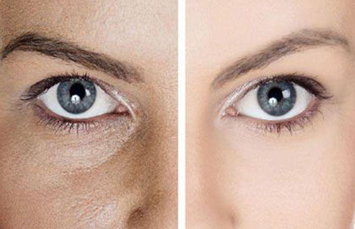 Как сузить поры на лице: 5 простых шагов к совершенству