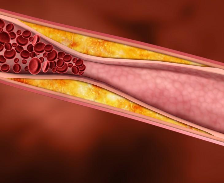 Как понизить холестерин без лекарств и очистить сосуды