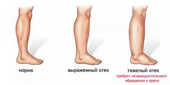 Как легко избавиться от боли в ногах?