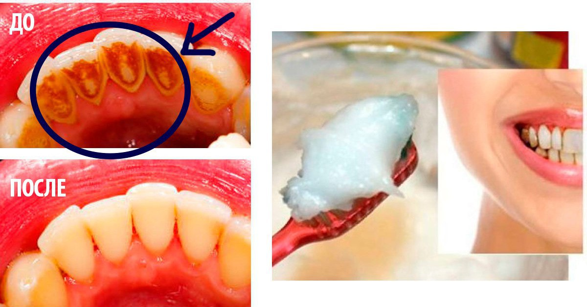 Чем почистить камень на зубах в домашних условиях 797