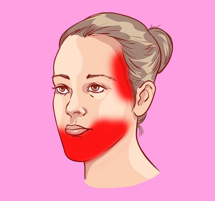 9видов головной боли, закоторыми скрываются проблемы создоровьем