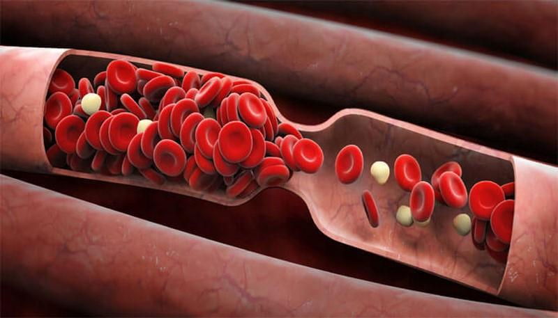 Повышенная вязкость крови — это опаснее, чем вы думаете!
