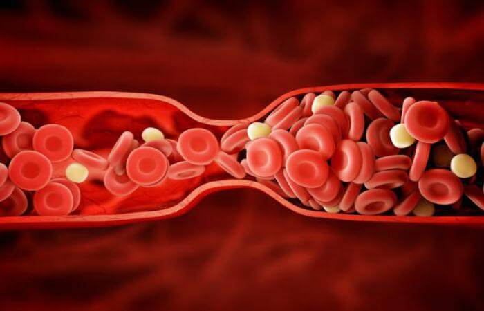Как предотвратить образование тромбов: 10 продуктов-антикоагулянтов