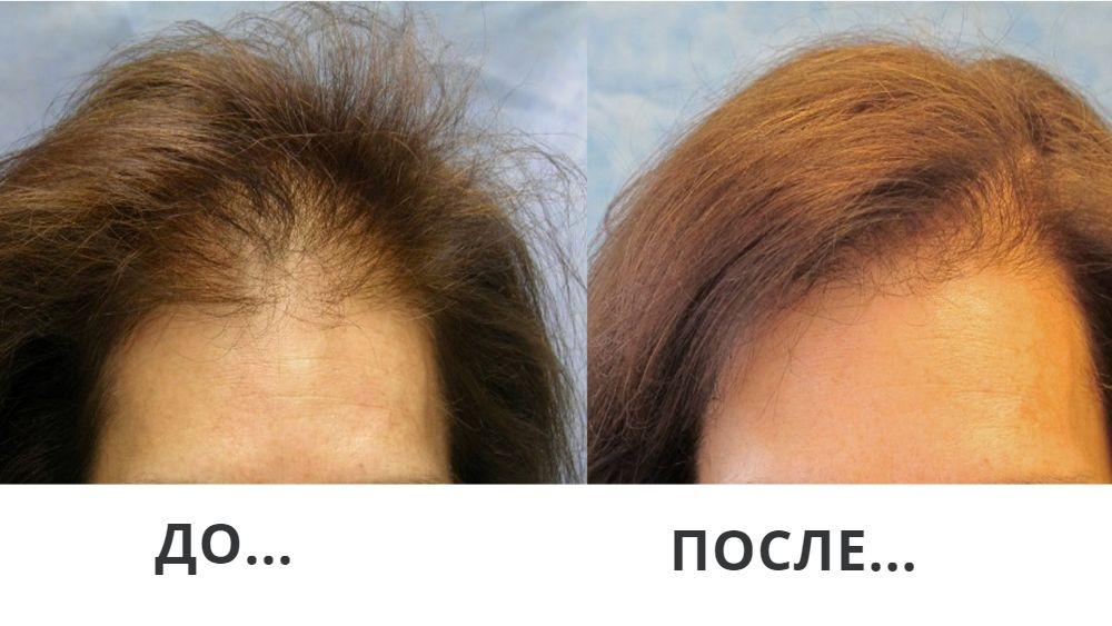 Лучшее СРЕДСТВО от выпадения волос за копейки