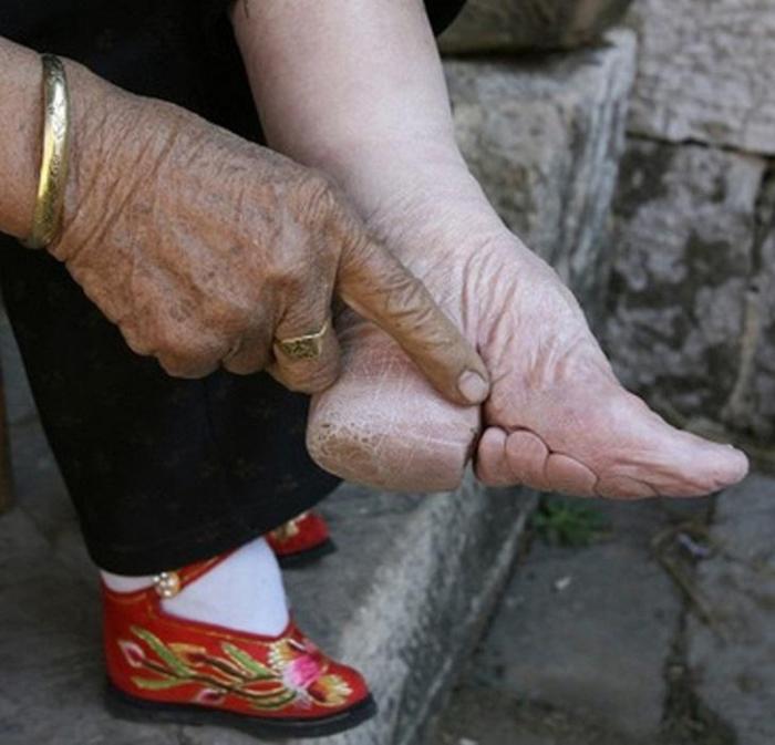 Бинтование ног туфельки-лотосы