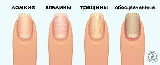 На какие проблемы со здоровьем может указывать состояние ваших ногтей?