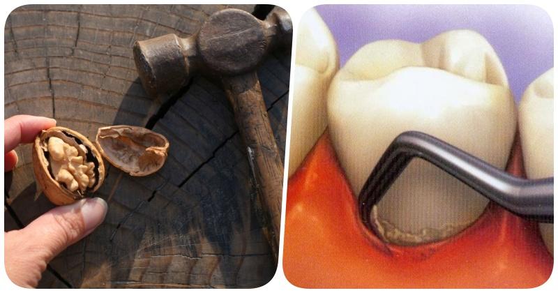 Домашнее средство против зубного камня: доступная каждому профилактика с помощью грецких орехов