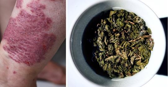 Природная борьба с экземой с помощью этого традиционного китайского чая!