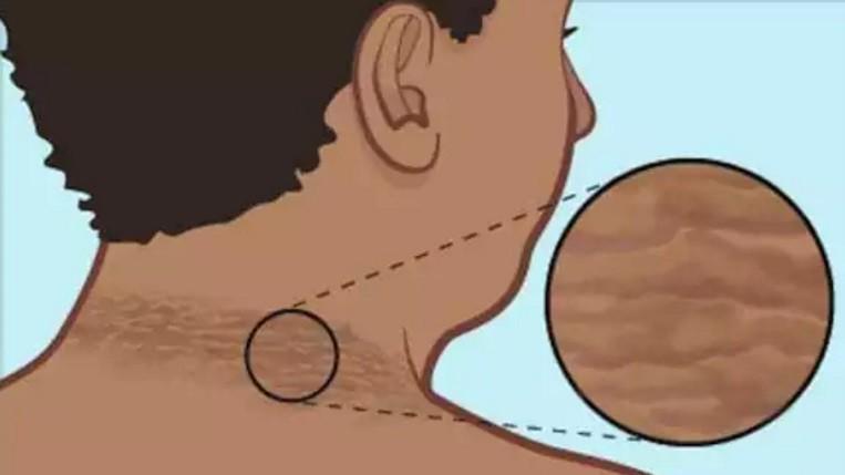 Как избавиться от темной кожи на шее с 5 домашними средствами