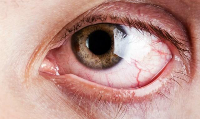 Улучшает размытое зрение и успокаивает жжение глаз с помощью простого домашнего рецепта.Подготовьте это естественное средство и восстановите зрение.