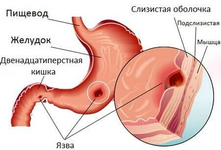 Симптомы язвы жедудка