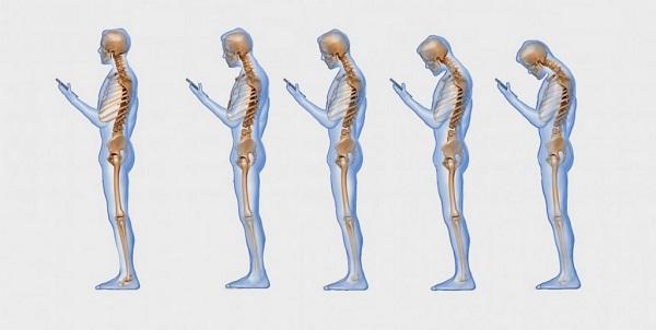 8 дельных советов, которые помогут исправить осанку и предотвратить остеохондроз.